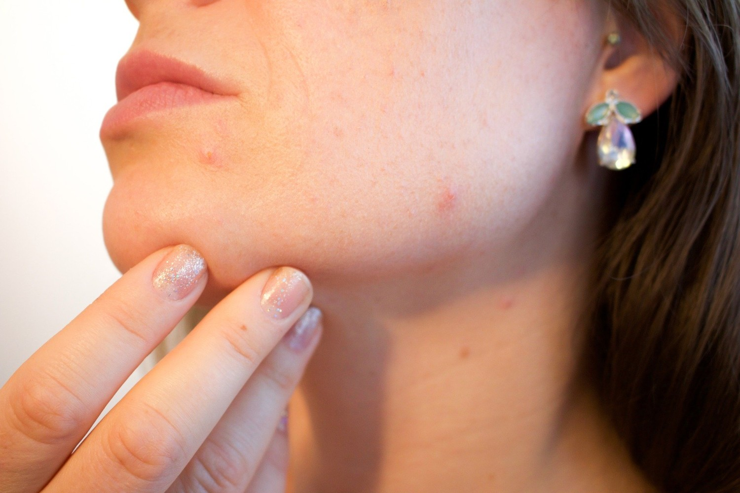 Woman's chin with acne